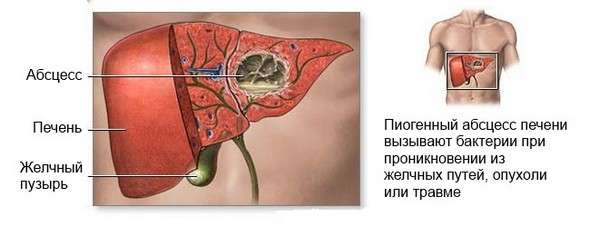 Абсцес печінки: симптоми і лікування
