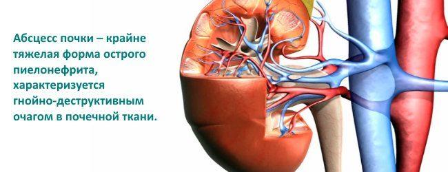 Абсцес нирки: симптоми і лікування