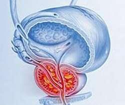 Гострий простатит: симптоми і лікування