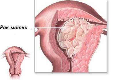 Аденокарцинома матки: симптоми і лікування