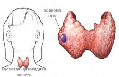 Аденома щитовидної залози: симптоми і лікування