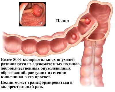 Аденоматозный поліп: симптоми і лікування