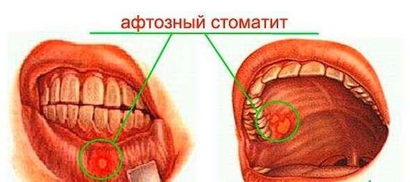 Афтозний стоматит: симптоми і лікування