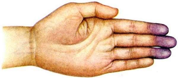 Ціаноз: симптоми і лікування