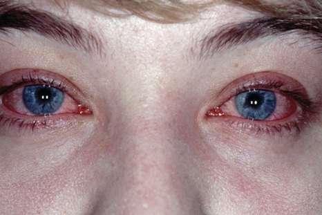 Алергічний конюнктивіт: симптоми і лікування