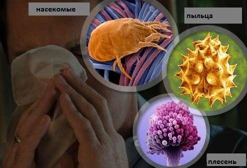 Алергічний риніт: симптоми і лікування