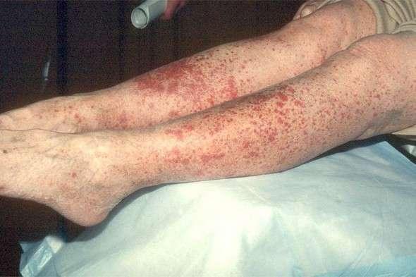 Алергічний васкуліт: симптоми і лікування
