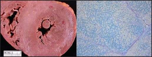 Амілоїдоз: симптоми і лікування