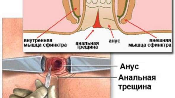 Анальна тріщина: симптоми і лікування