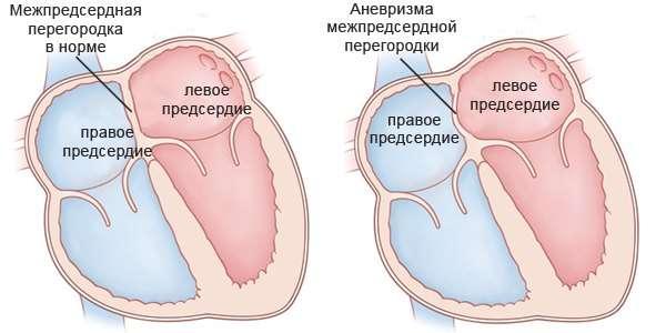 Аневризма серця: симптоми і лікування