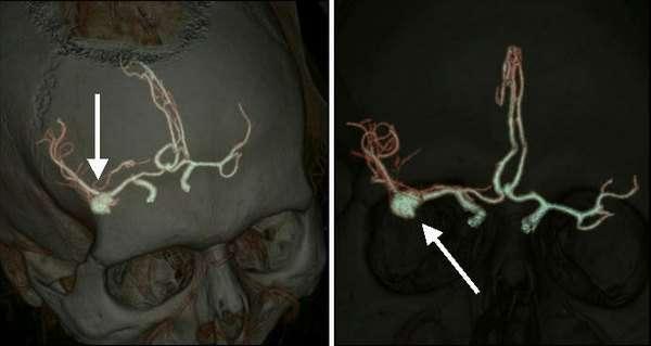 Аневризма судин головного мозку: симптоми і лікування