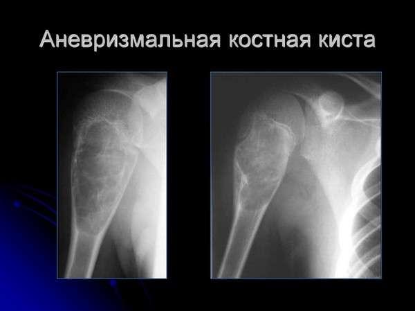Кісткова кіста: симптоми і лікування