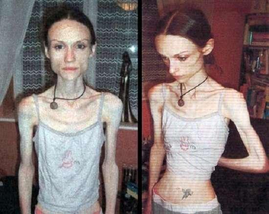 Анорексія: симптоми і лікування