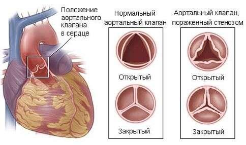 Стеноз: симптоми і лікування