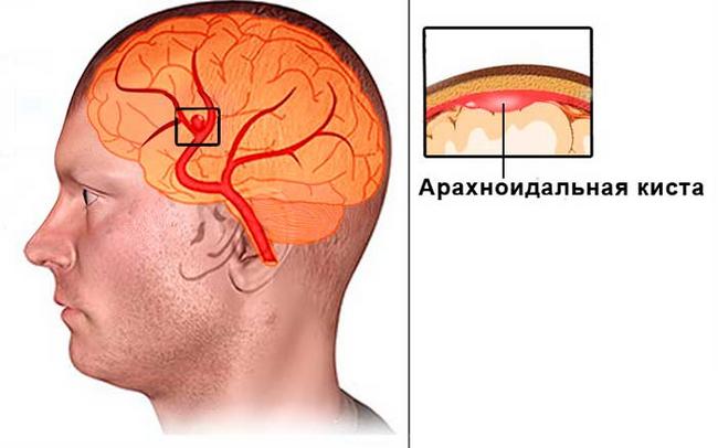 Арахноідальной кіста: симптоми і лікування
