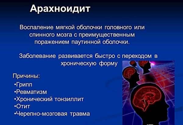 Мезотимпаніт: симптоми і лікування