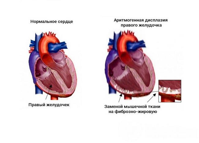 Аритмогенная дисплазія: симптоми і лікування