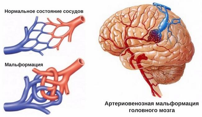 Артеріовенозна мальформація: симптоми і лікування