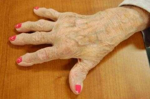 Артрит пальців рук: симптоми і лікування