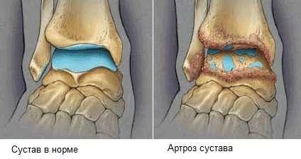 Артроз гомілковостопного суглоба: симптоми і лікування