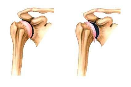 Артроз плечового суглоба: симптоми і лікування