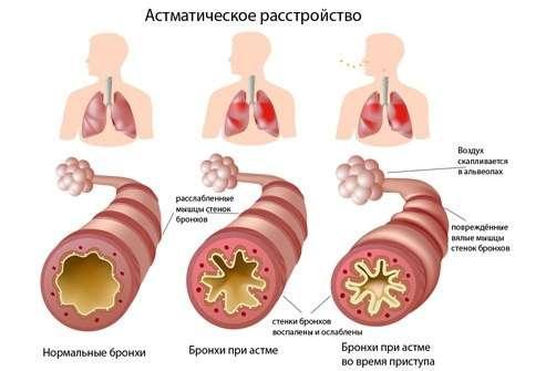 Астматичний статус: симптоми і лікування