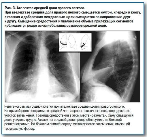Ателектаз легені: симптоми і лікування
