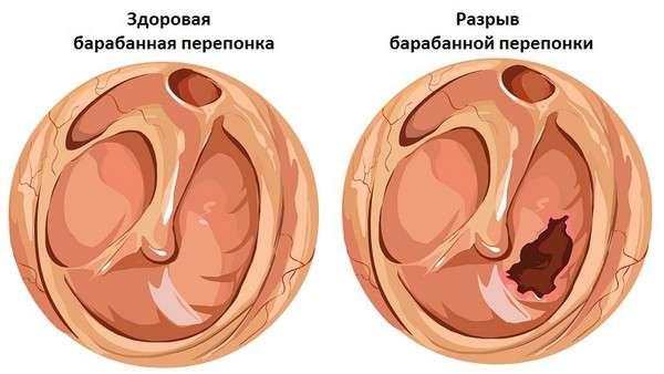 Баротравма: симптоми і лікування