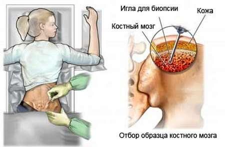 Променева хвороба: симптоми і лікування
