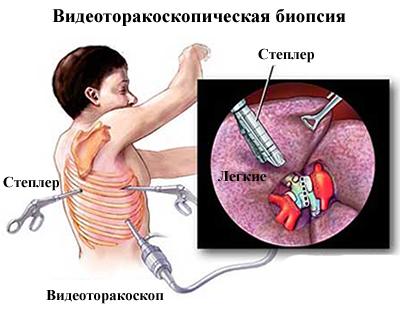 Пневмоцистна пневмонія: симптоми і лікування