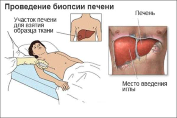 Алкогольний гепатит: симптоми і лікування