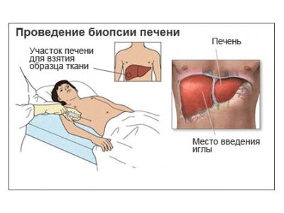 Дифузні зміни печінки: симптоми і лікування