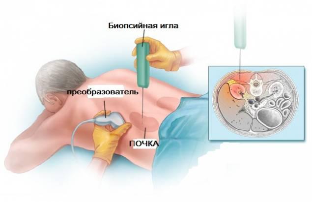 Гепаторенальный синдром: симптоми і лікування