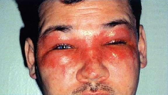 Блефароконъюнктивит: симптоми і лікування