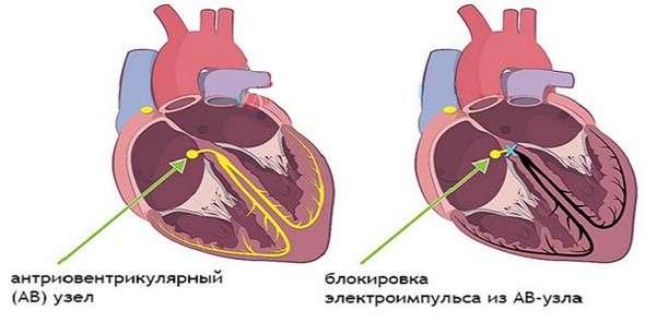 Блокада серця: симптоми і лікування