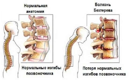 Анкілозуючий спондилоартрит (хвороба Бехтерева): симптоми і лікування