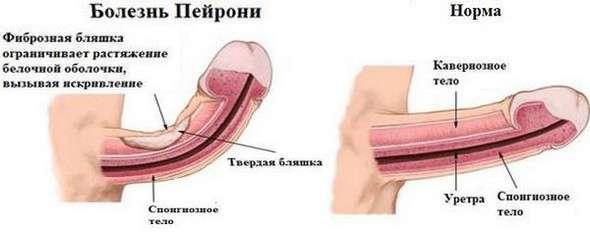 Хвороба Пейроні: симптоми і лікування