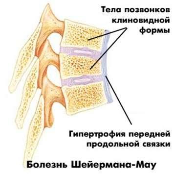 Остеохондропатия: симптоми і лікування