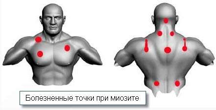 Шийний міозит: симптоми і лікування