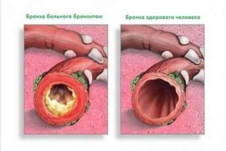 Трахеобронхіт: симптоми і лікування