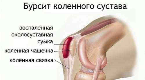 Бурсити колінного суглоба: симптоми і лікування