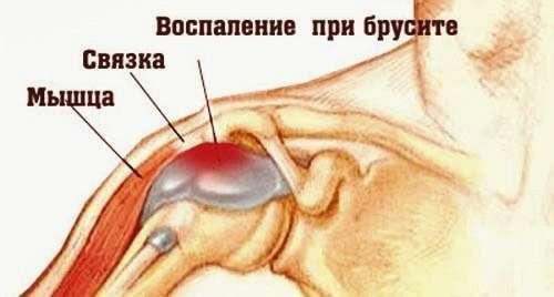 Бурсит плечового суглоба: симптоми і лікування