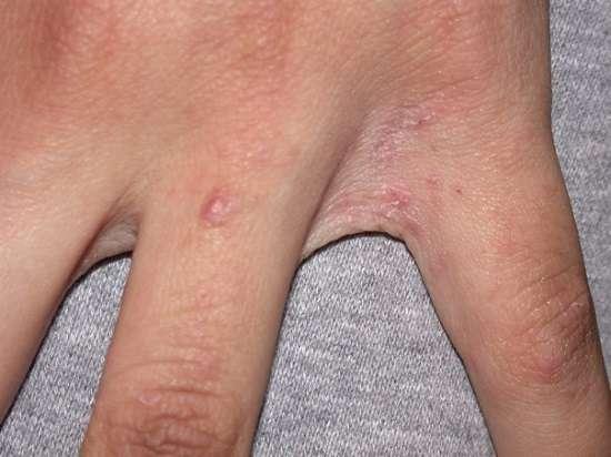 Короста: симптоми і лікування