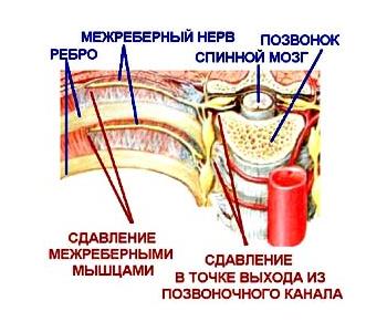 Торакалгий: симптоми і лікування