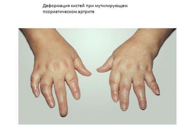 Псоріатичний артрит: симптоми і лікування