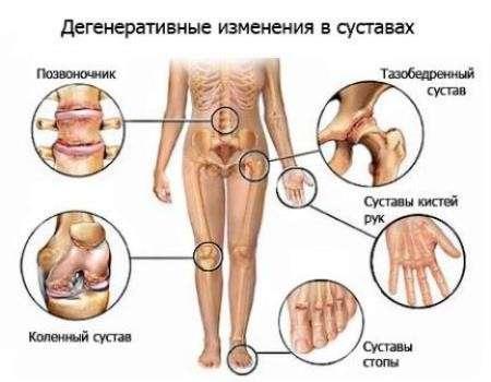 Поліартрозу: симптоми і лікування