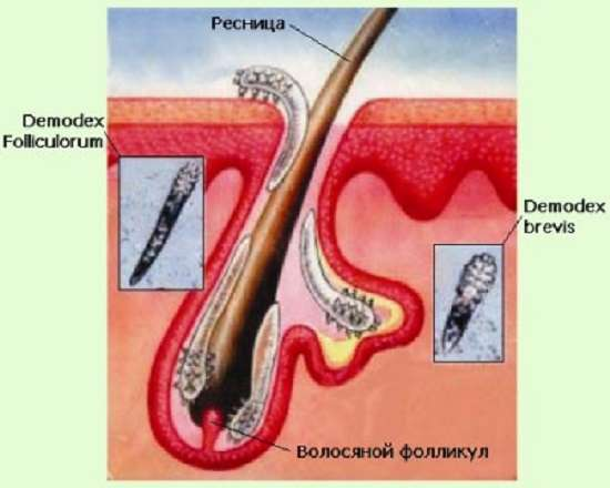 Демодекс (демодекоз): симптоми і лікування