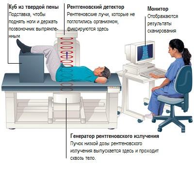 Лихоманка неясного генезу: симптоми і лікування