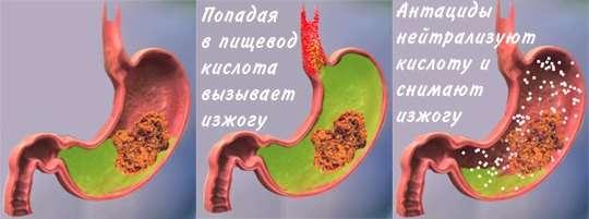 Печія: симптоми і лікування