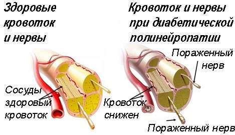 Полінейропатія: симптоми і лікування